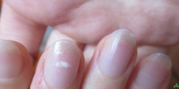 سفیدی روی ناخن , سفیدی روی ناخن نشانه چیست , سفیدی روی ناخن , سفیدی روی ناخن کودکان
