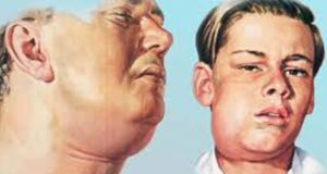علت و علائم و درمان عفونت سلولیت دندان عقل چیست