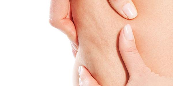 سلولیت , سلولیت چیست , سلولیت پا , سلولیت عفونی