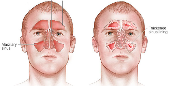 التهاب سینوزیت , التهاب سینوزیت چیست , التهاب سینوزیت , درمان التهاب سینوزیت