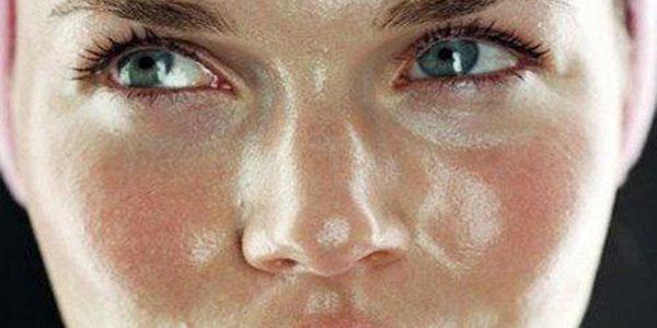 پوست چرب , پوست چرب و جوشدار , پوست چرب+درمان , پوست چرب صورت