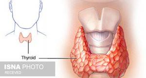 علائم و علت و درمان انواع سرطان تیروئید بدخیم چیست