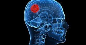 علائم و درمان تومور بدخیم مغزی و هیپوفیز و روده بزرگ و رحم و زبان و انگشت دست و چشم چیست