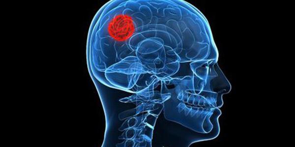تومور بدخیم , تومور بدخیم مغزی , تومور بدخیم هیپوفیز , تومور بدخیم روده بزرگ