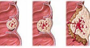 علت و علائم و راه درمان و نشانه های تومور روده بزرگ و کوچک بدخیم در کودکان چیست