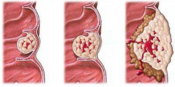 تومور روده , تومور روده بزرگ , تومور روده چیست , تومور روده کوچک