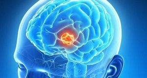 علائم و سردرد و طول عمر انواع تومور مغزی گرید 4 خوش خیم بدخیم آستروسیتوما در کودکان چیست