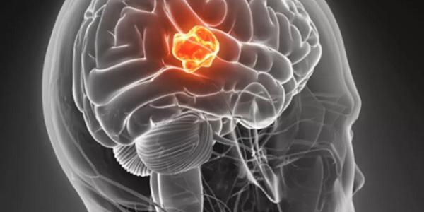 تومور چیست , تومور مغزی چیست , تومور مارکر چیست , تومور هیپوفیز چیست