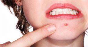 علت و درمان جوش صورت بعد از اصلاح در بارداری چیست