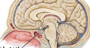 خطرات جراحی و علائم و درمان گیاهی تومور هیپوفیز پرولاکتین مغز و بارداری خوش خیم چیست