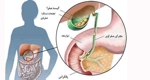 سرطان صفرا , سرطان صفراوی , سرطان مجاری صفراوی , سرطان کیسه صفرا کشنده است