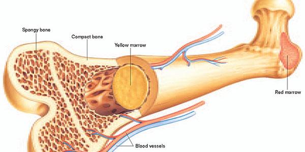 سرطان استخوان , سرطان استخوان چیست , سرطان استخوان لگن , سرطان استخوان ستون فقرات