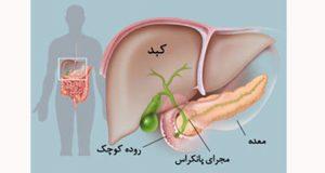 علت و علائم و درمان سرطان پانکراس بدخیم و خوش خیم