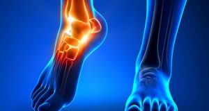 علت و علائم و درمان سریع سرطان پا و استخوان چیست