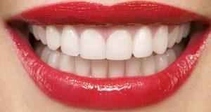 معایب و مراحل پروتز دندان پایه ثابت و متحرک ارزان چیست و یعنی چه