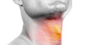 علت و درمان و نشانه های سرطان گردن و گلو چیست