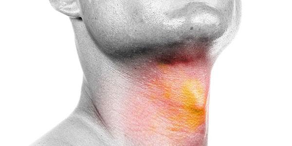 سرطان گردن , درمان سرطان گردن , غده در پشت گردن , علائم سرطان سر