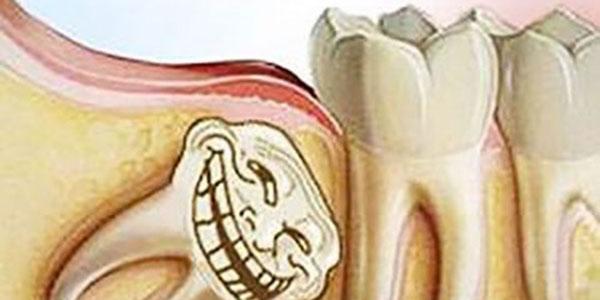 دندان عقل , دندان عقل و درد گوش , دندان عقل کشیدن , دندان عقل نهفته