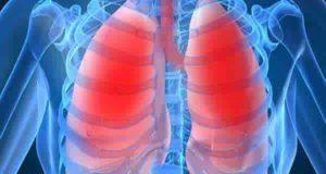 سرطان شش ؛ علائم و عوارض بیماری سرطان شش و ریه