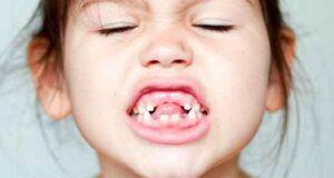 تعبیر خواب افتادن دندان از حضرت یوسف ، در اسلام و در دست و روانشناسی دندان